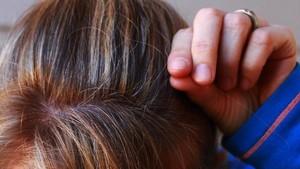 Yang Perlu Diketahui Soal Rambut Beruban