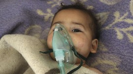 Serangan Gas Racun Sisakan Derita Warga Suriah