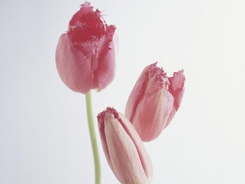 5 Bentuk Miss V Paling Umum, dari Tulip Sampai Tapal Kuda