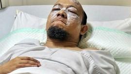 Operasi Mata Novel Baswedan Ditunda Dua Bulan