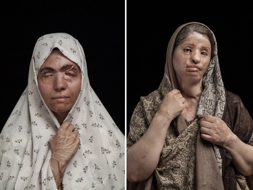 Potret Korban Serangan Air Keras Pemenang Sony World Photography Awards