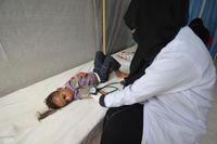 Kolera merupakan penyakit diare akut yang bisa membunuh dalam waktu beberapa jam jika pasien tidak ditangani dengan baik. Anak-anak berusia 5 tahun ke bawah dengan gizi buruk memiliki risiko paling tinggi terinfeksi penyakit ini. (Foto: REUTERS/Abduljabbar Zeyad)