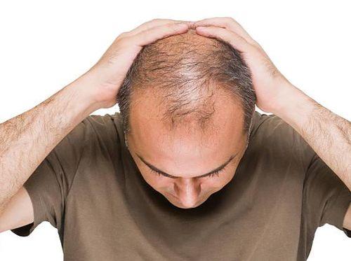 kebotakan bikin stres? ini tips cerdas memilih produk penumbuh rambut Minyak Kemiri Mengatasi Kebotakan