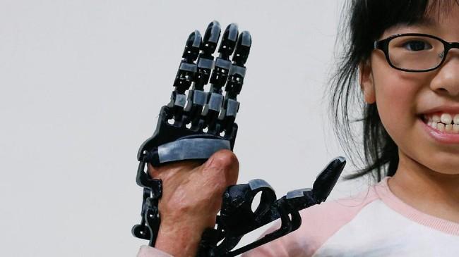Berbeda dengan lengan palsu pada umumnya, lengan bionik yang dicetak Chang tidak memerlukan latihan medis, cukup dengan melihat video secara daring untuk belajar menggerakkan jari-jari tangan. (REUTERS/Tyrone Siu)