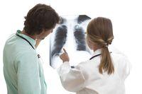 Merokok bisa menyebabkan masalah di saluran pernapasan terutama di paru-paru. Yang paling sering terjadi penyakit paru obstruktif kronis (PPOK). (Foto: Thinkstock)