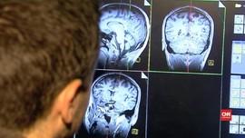 Ilmuwan Kembangkan Teknologi Pembaca Usia Otak