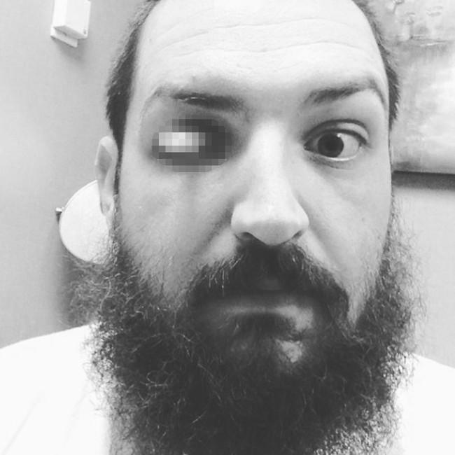 Potret Selfie Iseng Para Pengguna Mata Palsu