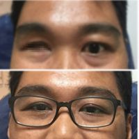 Pakai kacamata ditambah mata palsu, penglihatan jadi jelas. (Foto: Instagram/markstagrammmm)