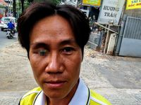 Kalau sedang jalan tiba-tiba bertemu orang dengan mata setengah copot, bagaimana reaksi kamu? (Foto: Instagram/aschuftan)