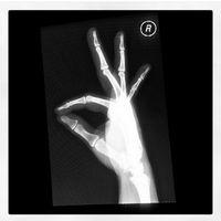 Sedang mengecek bagian mana yang fraktur, pasien ini sempat-sempatnya membuat pose 'ok' dengan tangannya.