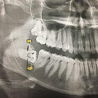 Rontgen gigi bungsu seorang wanita yang mengalami impaksi. Sepertinya sang gigi pesta terlalu liar sampai-sampai tak bisa lagi bangun tegak. (Foto: Instagram/stephanieelynnstudios)