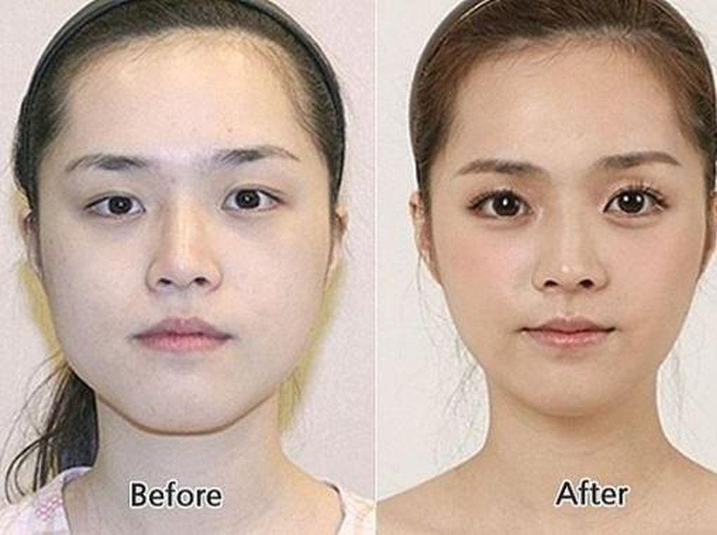 Perubahan 15 Cewek Korea Sebelum & Sesudah Operasi Plastik, Bikin Syok!