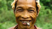 Modifikasi tubuh yang satu ini budaya asli Indonesia tepatnya dari Mentawai. Gigi ditajamkan dengan pahatan karena dianggap lebih terlihat menarik. (Foto: ABC Australia)