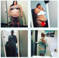 Elena, yang kini berusia 29 tahun, sadar harus melakukan perubahan yang sangat drastis. Ia tidak punya pilihan selain operasi lambung. (Foto: Instagram @elles_journey_to_good_health)