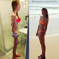 Dari prevalensinya anoreksia diketahui lebih banyak diidap oleh wanita dibandingkan pria. Kemungkinan karena citra badan ideal lebih ditekankan untuk kaum wanita. (Foto: Instagram/herculesworkouts)