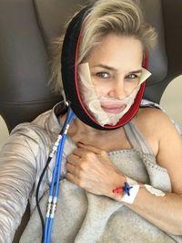 Sebagian silikon dari implan payudara yang bocor bermigrasi ke area sinus Yolanda menyebabkan infeksi.