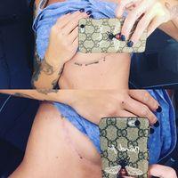 Bila cukup beruntung mungkin hanya bekas luka yang tertinggal dari kasus implan payudara gagal. (Foto: Instagram/kvtuchi)