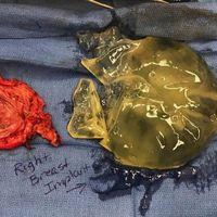 Ini adalah contoh implan gagal yang diambil dari payudara seorang pasien wanita. Implan pecah mengeluarkan silikon di sekitar payudara dan menyebabkan komplikasi pada sang pasien. (Foto: Instagram/breast_implant_illness)