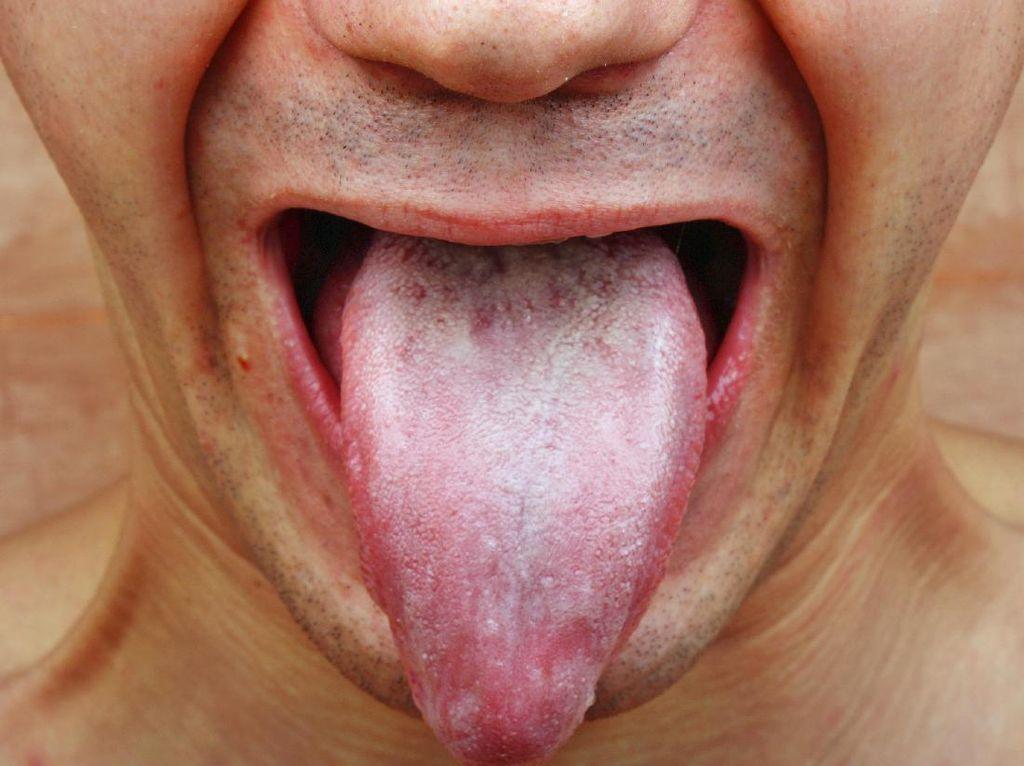 Sariawan Kambuhan Tiap Pekan, Apakah Indikasi Penyakit?