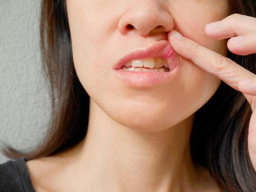 Waspadai Kanker Mulut, Segera Periksa Bila Sariawan Tak Kunjung Sembuh