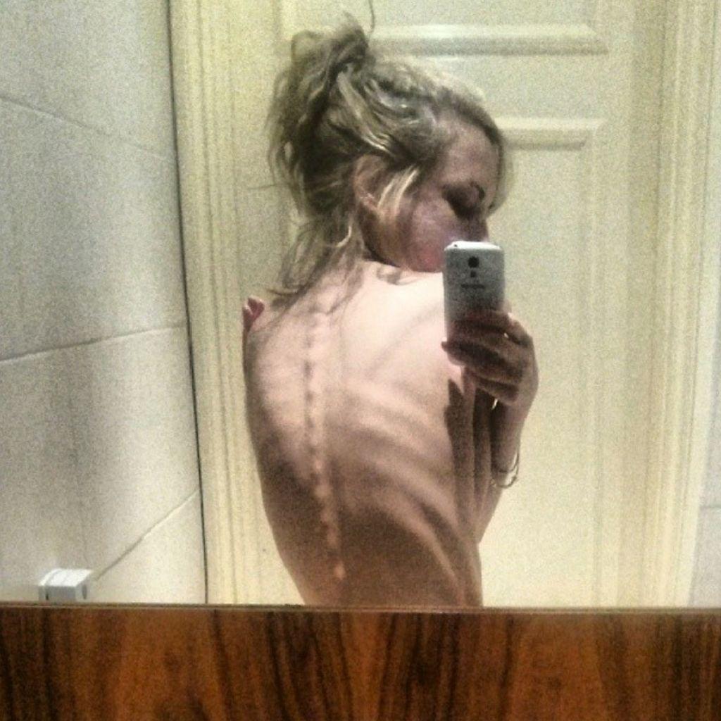Dipicu Tren Pamer Tulang di Instagram, Gangguan Pola Makan Makin Mengancam