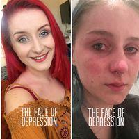 Amelia ingin menunjukkan bahwa tidak ada ciri khusus dari wajah seseorang yang memiliki depresi. (Foto: Instagram/selfloveclubb)