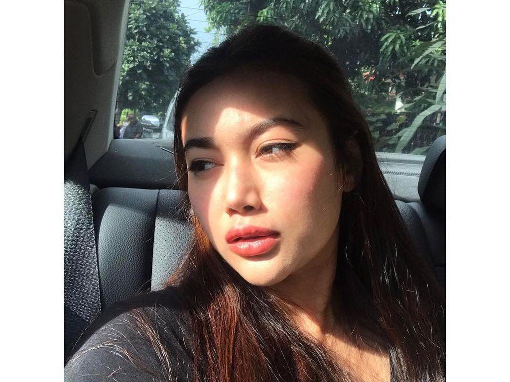 Foto: Bibir Ratu Felisha yang Disebut Netizen Makin Tebal, karena Filler?