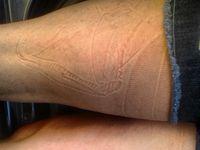 Pola tidur yang tampak seperti keriput ini akan hilang dengan sendirinya. Namun pada orang tua pola mungkin akan hilang lebih lama karena keelastisan kulit yang sudah berkurang. (Foto: Instagram/rexo_skeleton)