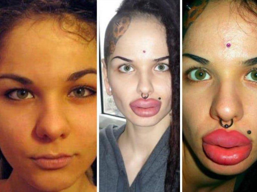 Foto: Wanita-wanita yang Gagal Filler Bibir Jadi Jontor Hingga Miring