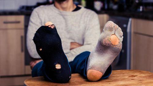 Idap Sindrom Langka, Pria-pria Ini Tak Pernah Bisa Pakai Sepatu