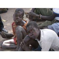 Nodding syndrome adalah penyakit aneh yang pertama kali ditemukan di Sudan pada tahun 1960-an. Penyakit ini menyerang anak-anak di mana gejalanya kejang-kejang sambil mengangguk dan diikuti dengan penghambatan pertumbuhan fisik dan otak hingga mengalami cacat mental. Penyakit ini belum diteliti lebih lanjut apa penyebabnya. Foto: Instagram/@nodding_syndrome_awareness