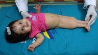 Banyak bayi yang terlahir dengan kondisi ini tidak bertahan setelah sehari atau dua hari dilahirkan karena banyaknya komplikasi yang terjadi. Yang sering ditemukan seperti ketidaknormalan pada sistem pencernaan, tulang pelvis, ginjal yang belum matang, sampai malformasi jantung. Foto: Instagram