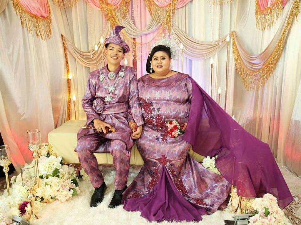 Meski Dihujat Netizen, Pengantin Ini Buktikan Cinta Sejati Tak Pandang Fisik