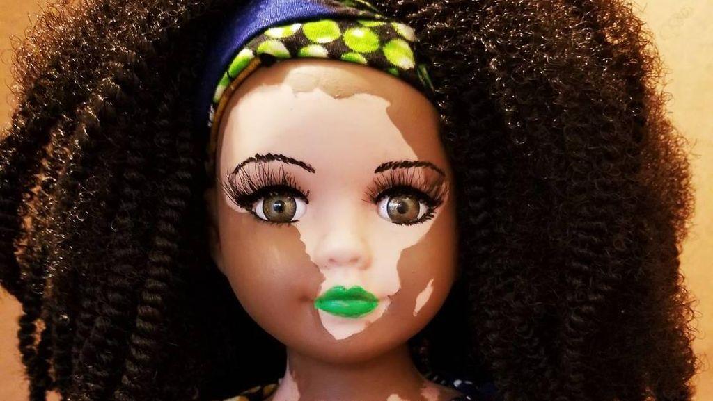 Barbie Berwarna Belang Dibuat Seniman Ini untuk Hargai Vitiligo