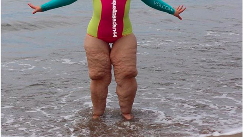 Penampakan Perut Bergelambir Saat Berat Badan Susut Ekstrem