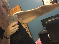 Area lengan, kaki, dan perut adalah tempat di mana biasanya kulit ekstra ini akan sangat terlihat menggelambir. (Foto: instagram/ashleyinonderland)