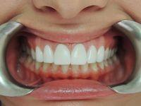 Selain periodontitis, kebiasaan buruk ini juga bisa menyebabkan enamel gigi rusak.