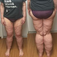 Tapi ada juga yang merasa bahwa kulit ekstranya tidak sedap dipandang. Seperti wanita ini yang mengaku biasa menyembunyikan kulit kakinya dengan memakai celana jin. (Foto: instagram/keetahn)