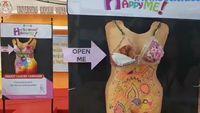 Di Indonesia, kampanye kanker payudara juga sudah masif dilakukan. Salah satu yang tertangkap unik adalah pameran manekin karya mahasiswa Universitas Katolik Widya Mandala Surabaya (UKWMS) 2016 lalu. Pameran ini dilakukan untuk mengajak masyarakat agar sadar untuk menjaga tubuh dari kanker payudara. Foto: Youtube