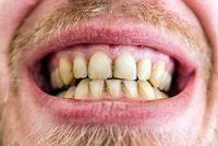 Kandungan air tanah yang tinggi mineral dapat menyebabkan gigi kuning jika digunakan untuk menyikat gigi. (Foto: Thinkstock)