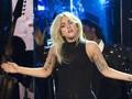 Lady Gaga Jalani Pemeriksaan X-Ray Usai Jatuh dari Panggung