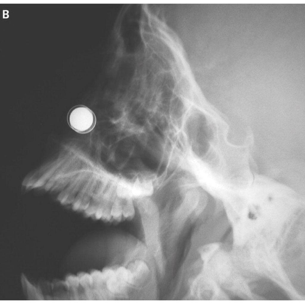 Dinding Hidung Bocah Ini Nyaris Bolong Karena Kemasukan Magnet