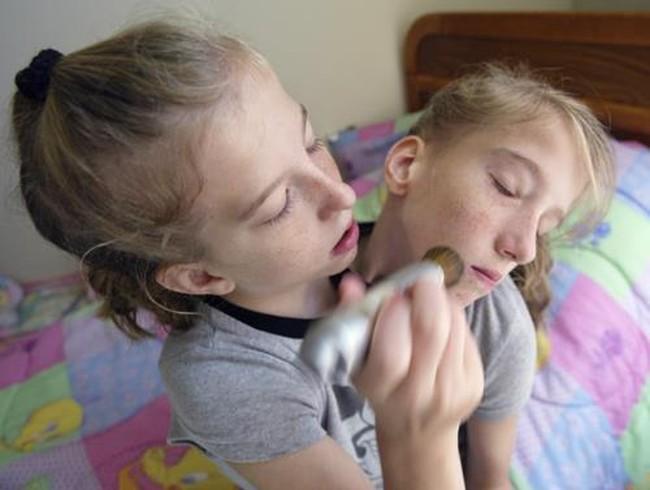 Potret Kehidupan Sehari-hari si Kembar Dempet Abby dan Britany