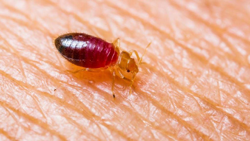 Tips Atasi Beragam Gigitan Serangga dan Hewan Kecil