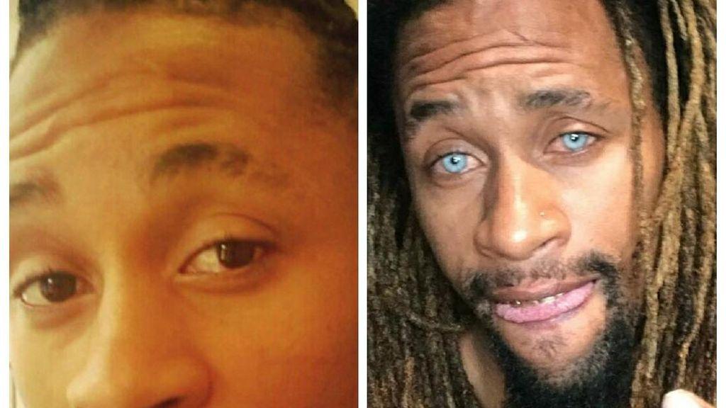Foto: Pakai Laser, Orang-orang Ini Mengganti Permanen Warna Matanya