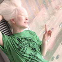 Orang dengan albinisme atau sebutan populernya albino kerap mendapat diskriminasi karena warna tubuh yang berbeda. Hal tersebut juga pernah dialami Connie Chiu, seorang wanita kelahiran Hong Kong. (Foto: Facebook/conniechiumodel)