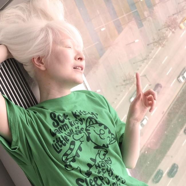 Tubuhnya Serba Putih, Wanita Ini Jadi Model Pertama dengan Albinisme