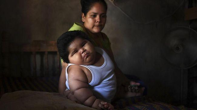 'Bayi Raksasa' 10 Bulan Punya Berat Setara Anak 9 Tahun