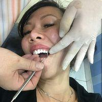 Selain menjaga badan, kebersihan dan kesehatan gigi juga menjadi hal yang diperhatikan oleh Yoan. (Foto: Instagram/drg_yoan)