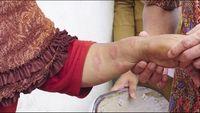 Kusta merupakan penyakit yang menyerang saraf tepi manusia yang ditimbulkan oleh mikrobakteri leprae. Penyakit ini diawali oleh bercak yang kebas (mati rasa). Menurut dr Firmansyah Arief, MPH, Konsultan Kusta dari Badan Kesehatan Dunia (WHO) bercak ini tidak harus berwana putih namun juga bisa berwarna merah. (Foto: Aisyah Kamaliah/detikHealth)